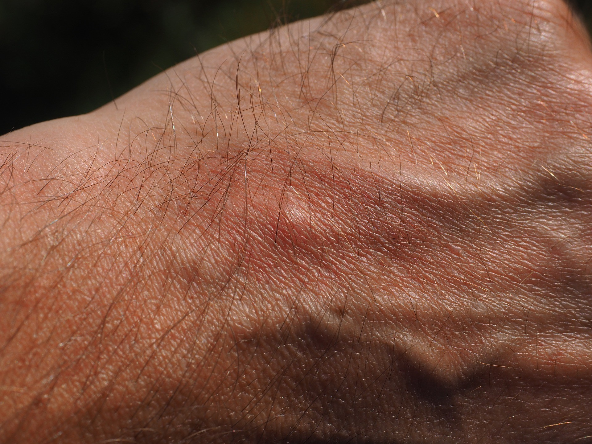 Small Bumps on Hands Not Itchy